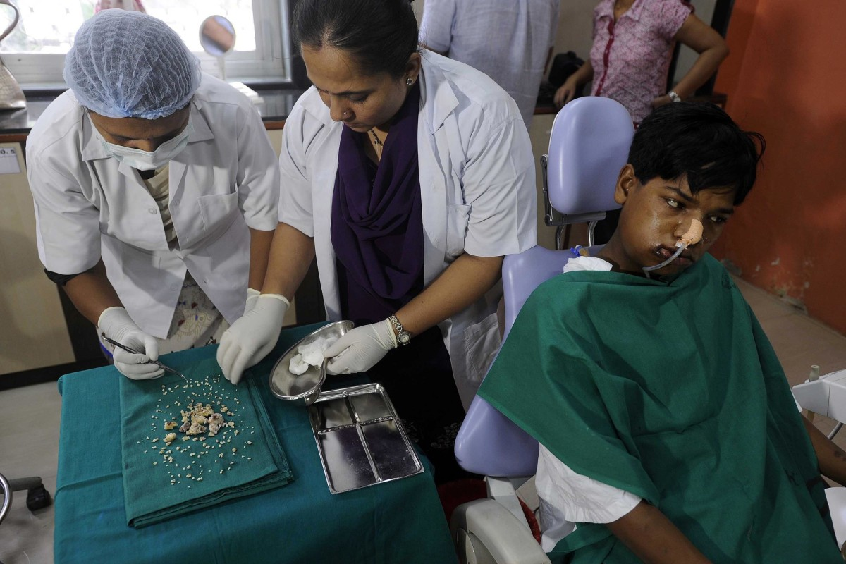 Image: Indian dentists display teeth removed after operating on seventeen year old Ashik Gavai at JJ Hospital in Mumbai on July 22