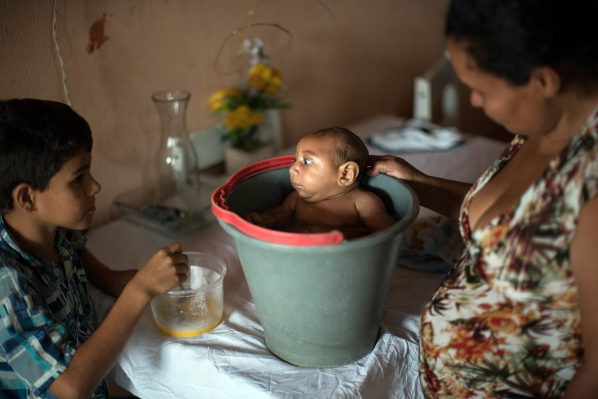 Brazil Revises Birth Defect Count in Zika Investigation  NBC News