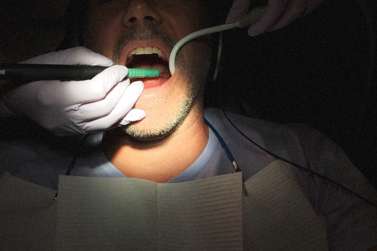 Bacteria that cause gum disease may also cause rheumatoid arthritis