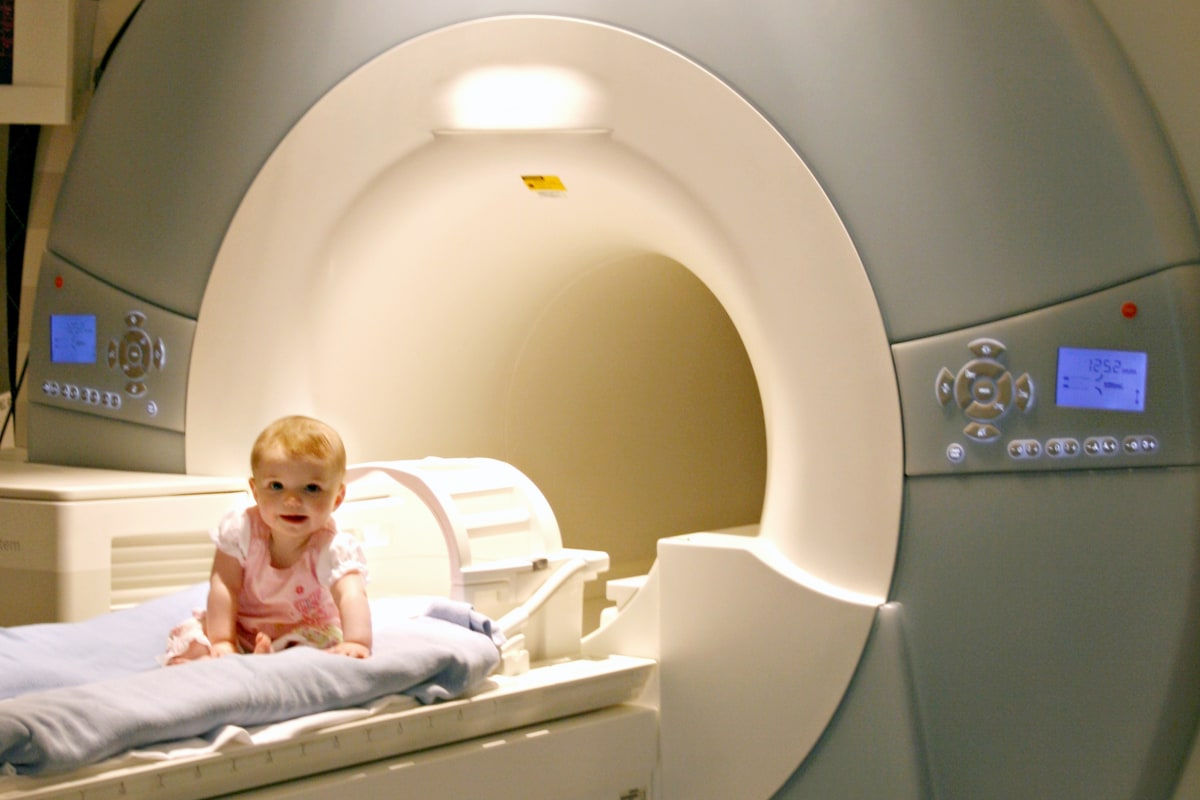 Brain scans detect signs of autism in very young babies