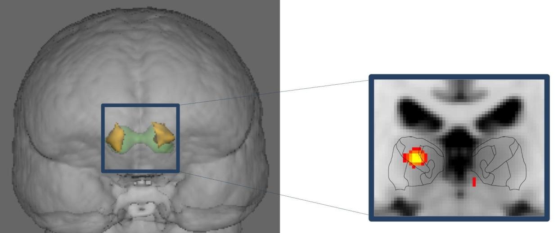 Image: Migraine brain
