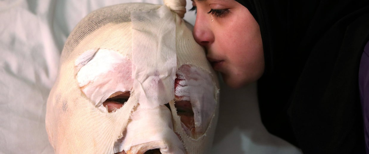 Image: Teen kisses injured father after car bomb in Hermel, Lebanon, on Feb. 2