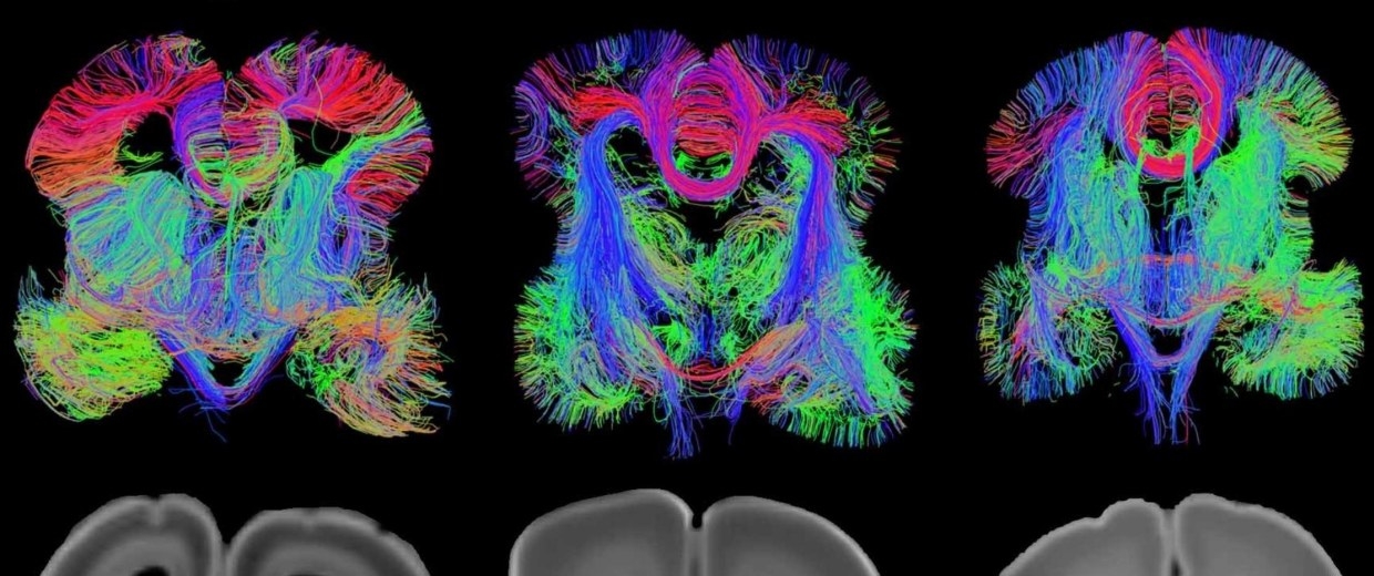 Image: Brain views