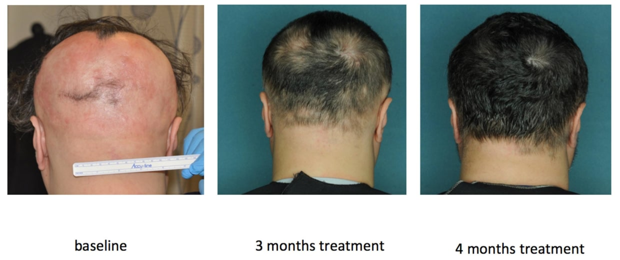 Image: The effect of an FDA-approved drug that restored hair growth in a research subject with alopecia areata
