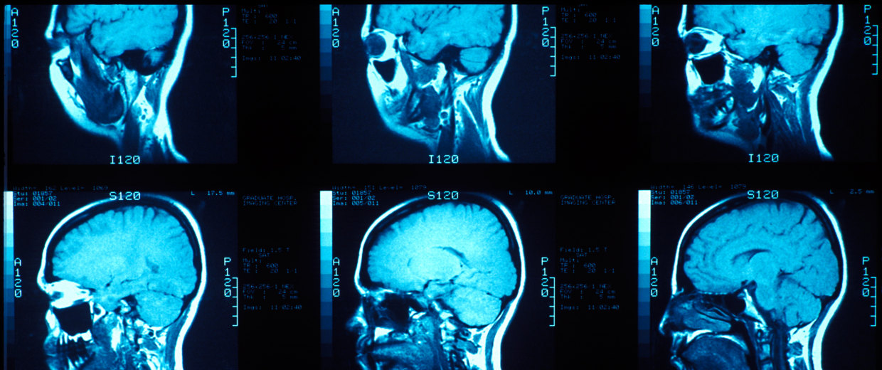 Image: MRI of the lateral skull