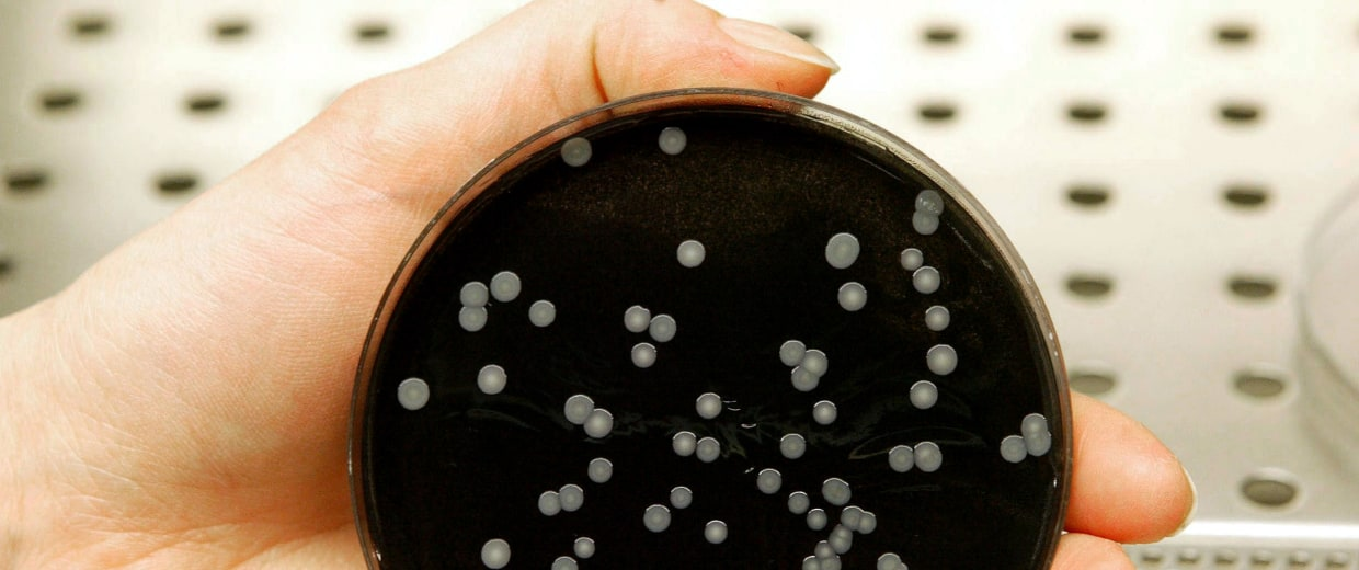 Image: A technician holds a culture dish with colonies of legionella in a laboratory
