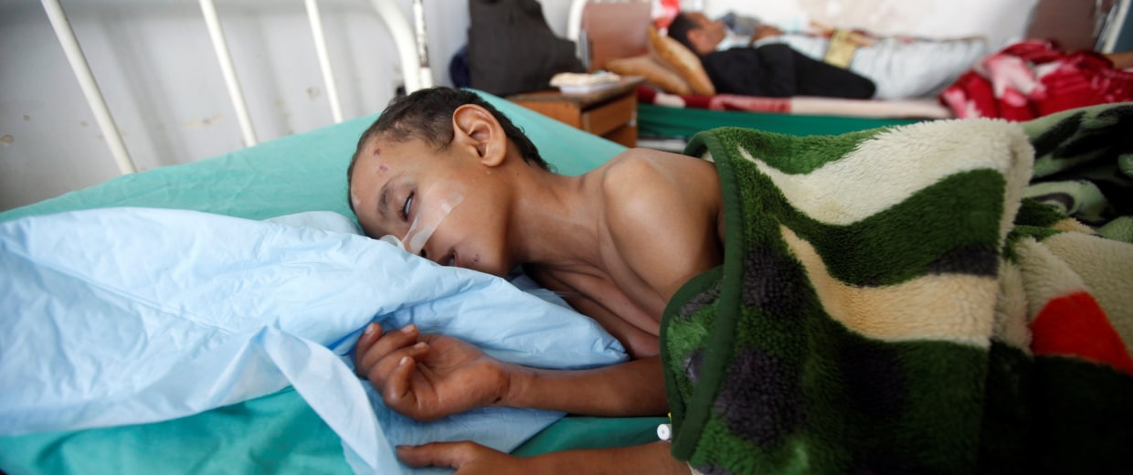 Image: A boy lies on a bed of a hospital in Sanaa, Yemen.