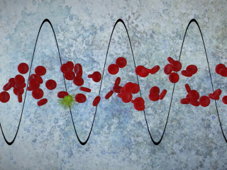 Cancer Treatment Could Improve, Thanks to Sound Waves