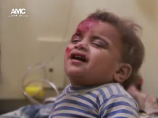 Children Wounded in Aleppo Airstrikes as Cease-Fire Ends