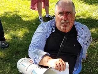 Bloodshed in D.C. as Violence Flares at Turkish Ambassador's Residence