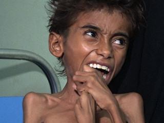 The Face of Suffering: Famine, Cholera Wreak Havoc in War-Torn Yemen