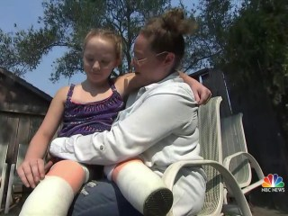 Little Girl Gets New Prosthetics After Hers are Destroyed in Fire