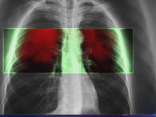 Immunotherapy breakthrough for lung cancer, the biggest cancer killer