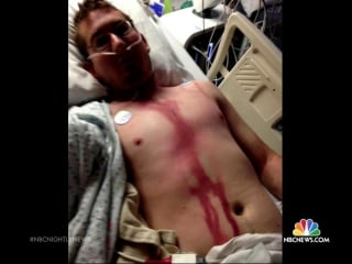 Idaho Man Survives Memorial Day Lightning Strike to Head