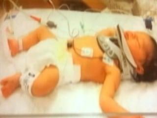 Infant Injured After Nurse Drops Him