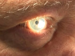Microscopic Implant Helping to Heal Eyes