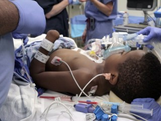 Inside the OR During Zion Harvey's Transplant Surgery