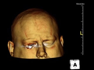 3D Scan of Patient With a Nail in the Eye