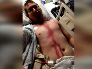Man Survives Lightning Strike