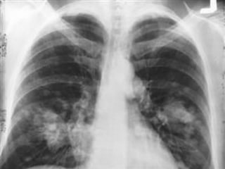 Drug Harnesses Immune System to Fight Lung Cancer