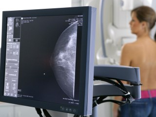 U.S. Panel 'Clarifies' Mammogram Advice