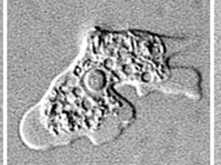 Deadly Brain Amoeba Found in Louisiana Parish Water