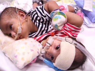 Conjoined Twins Prepare For Separation at Houston Hospital