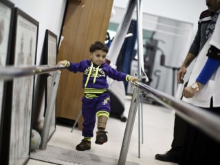 3-Year-Old Learns to Walk on Prosthetic Leg in Gaza