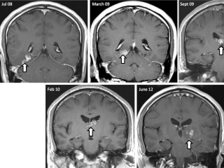 Worm That Lived in Man's Brain for Four Years Has Genome Mapped
