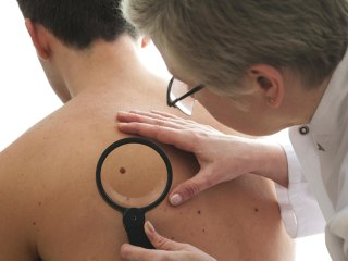 FTC Targets App Marketers That Claim to Detect Melanoma