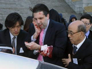 U.S. Ambassador to South Korea Mark Lippert Attacked With Knife