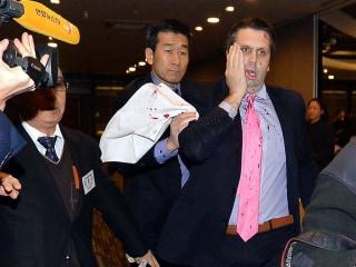 Attack on U.S. Ambassador Lippert in South Korea: How Did Assailant Get So Close?