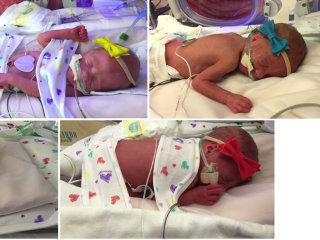 'Thriving': First All-Girl Quintuplets in U.S. Are Born in Texas