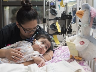 Formerly Conjoined Twins Celebrate First Birthday After Surgery