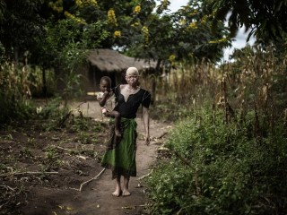 Albinos in Malawi Face Violence Fueled By Superstition
