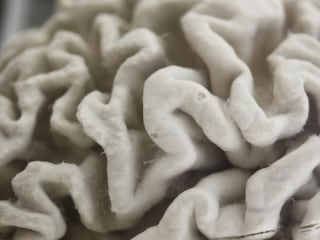 Nine Brains Found Next to Train Tracks in NY