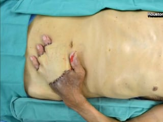 Doctors Sew Elderly Man's Hand Inside Stomach to Save Fingers