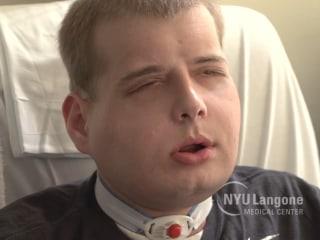 Firefighter Patrick Hardison Adjusts to New Face After Transplant Surgery
