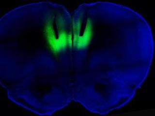 Brain Stimulation Technique Might Treat Addiction