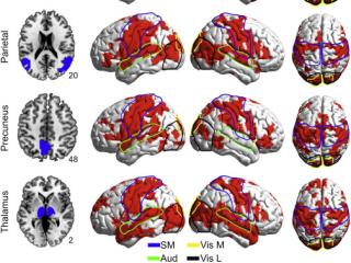 Here's Your Brain on LSD