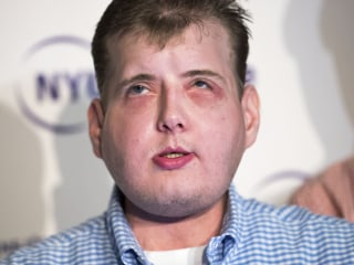 Face Transplant Patient: 'My Life Has Changed and Renewed'