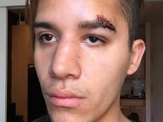 Gay Man Attacked in NYC Speaks Out