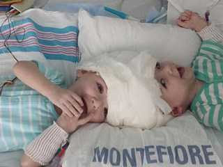 Conjoined Twin Boys Separated After 16-Hour Surgery