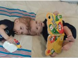 'Happy Rebirth Day': Twin Joined at the Head Separated Successfully