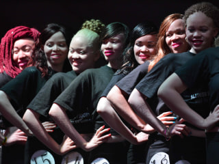 World's First Albino Beauty Pageant in Kenya Defies Deadly Stigma