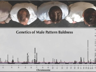 Will I Go Bald? Genetic Study Shows Complex Answer