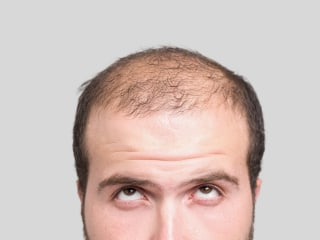 Hair Loss Drug Propecia Carries Risk of Losing Something Else