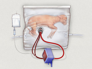 Artificial Womb Might Help the Littlest Premature Babies Survive