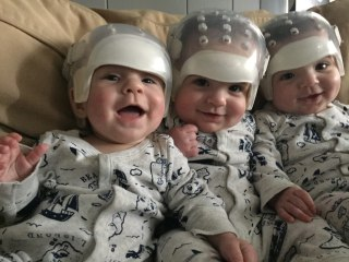 Triplets Make Medical History, Thrive After Surgery for Rare Defect