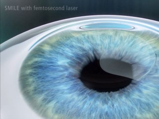 New Eye Surgery Holds Promise for Correcting Nearsightedness
